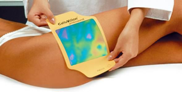 operación posvacaciones_diagnóstico corporal_termografico