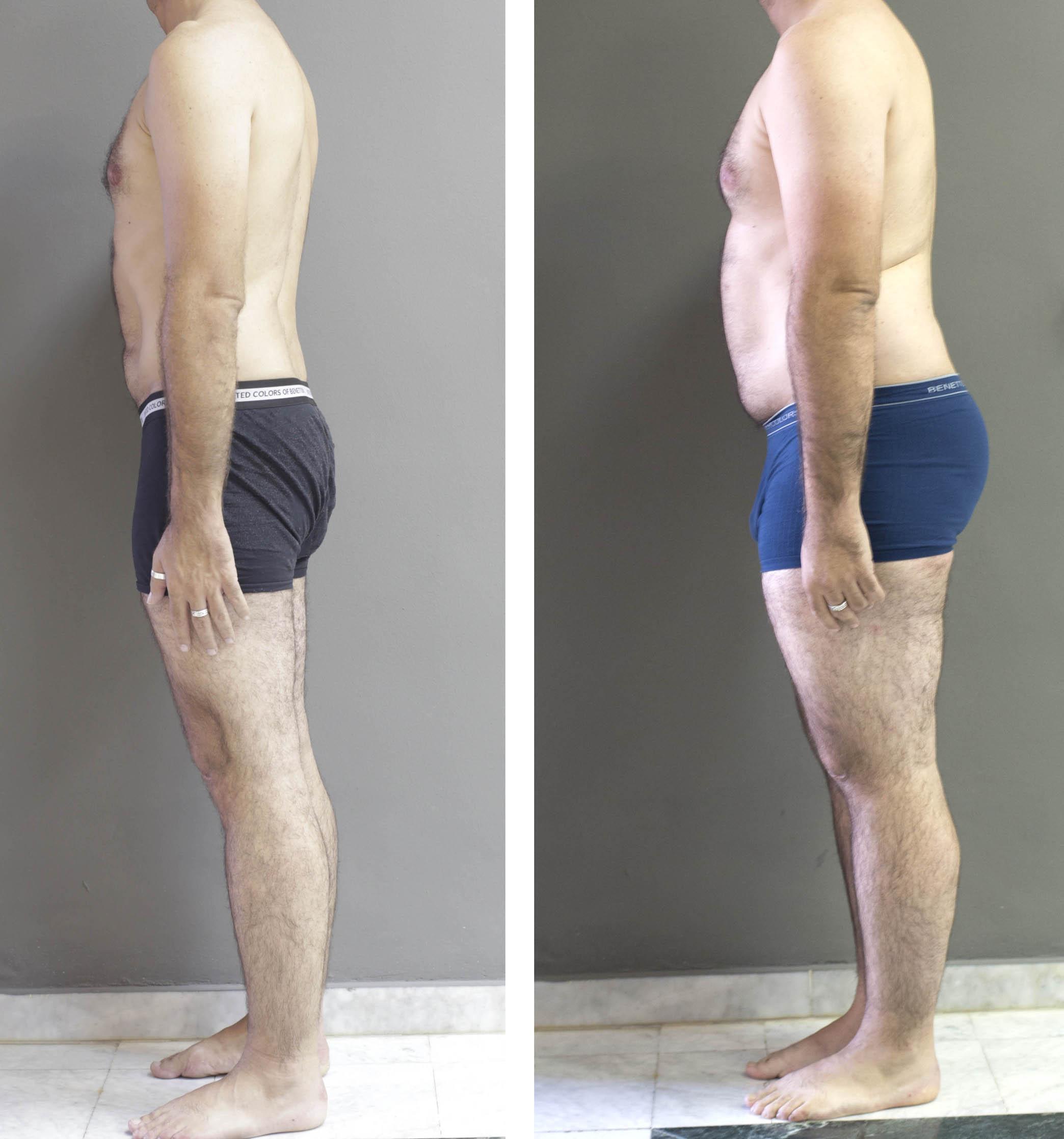 Centro de perdida de peso