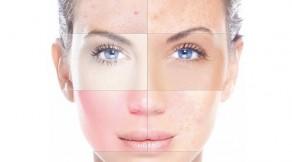 piel seca o átona, cómo evitarla