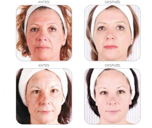 skin remodeling system