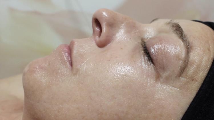 uso de la mascarilla y sus efectos sobre la piel